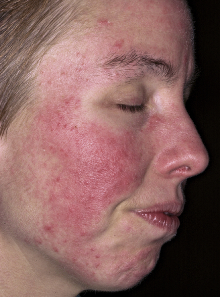 steroid induced rosacea recovery time